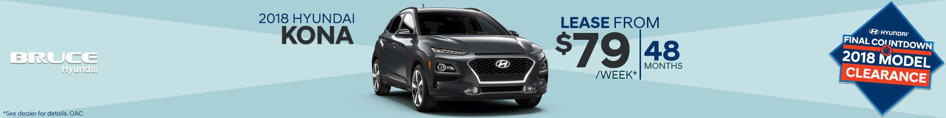 Lease the 2018 Hyundai Kona
