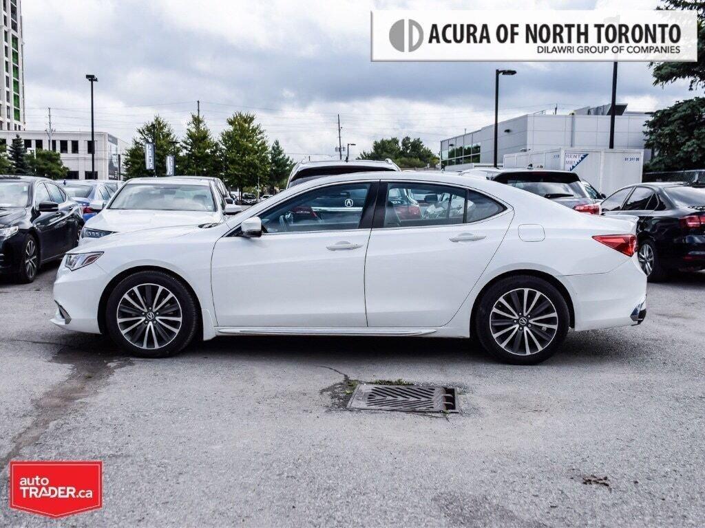 2018 Acura TLX 3.5L SH-AWD w/Elite Pkg in Thornhill, Ontario - 2 - w1024h768px