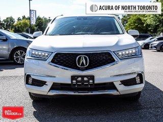 2018 Acura MDX Elite in Thornhill, Ontario - 4 - w320h240px