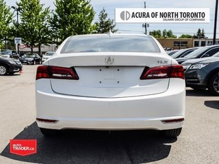 2017 Acura TLX 2.4L P-AWS in Thornhill, Ontario - 4 - w320h240px