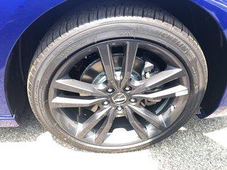 2020 Acura TLX 3.5L SH-AWD w/Elite Pkg A-Spec in Markham, Ontario - 4 - w320h240px